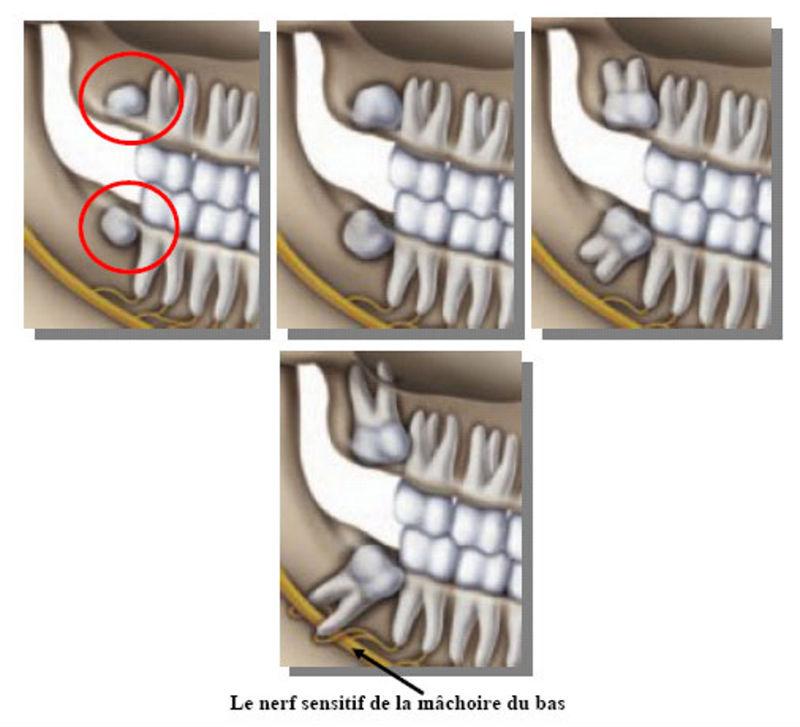 L'extraction précoce est recommandée pour prévenir les dommages au niveau du nerf de la mâchoire inférieure