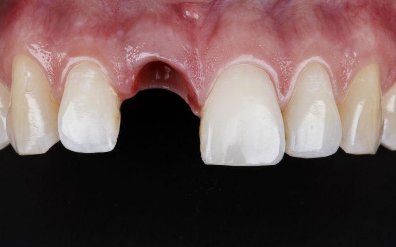 Remplacer une ou plusieurs dents